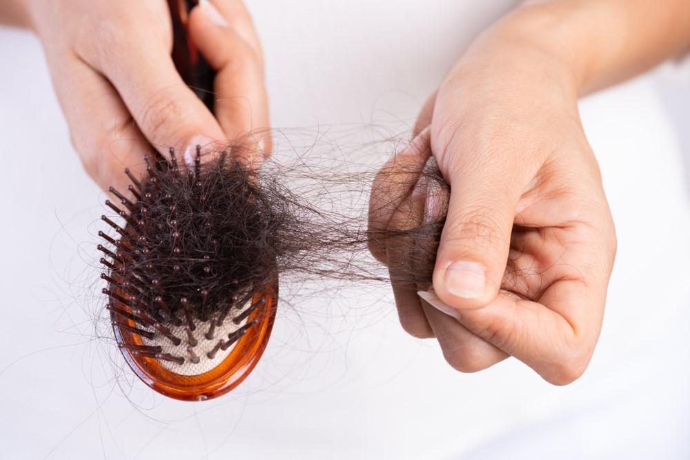padání vlasů u žen_1
