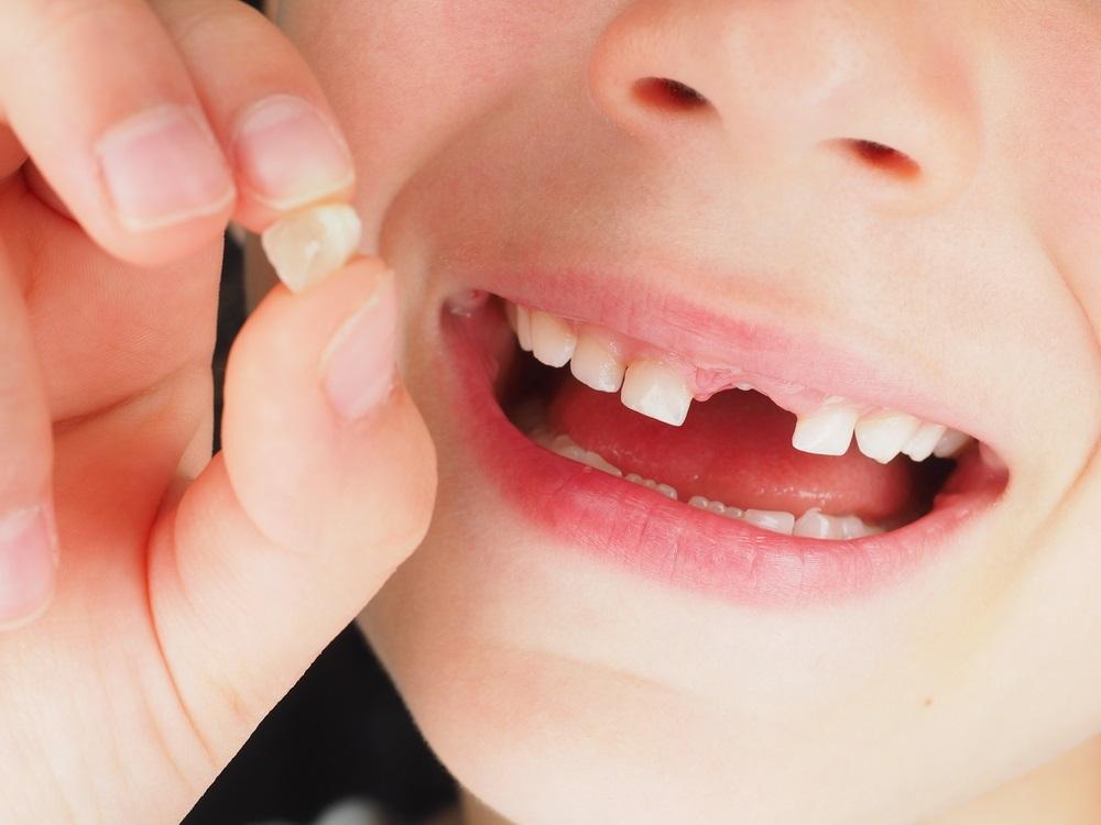 mléčné zuby_5