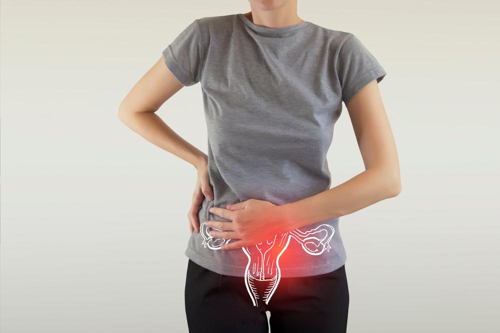 ovulační krvácení