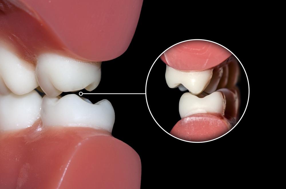 skřípání zubů u dětí_4