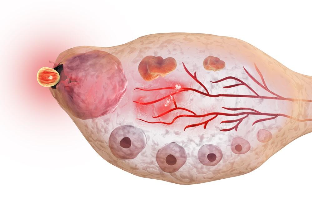 Ovulace obvykle přichází v polovině menstruačního cyklu. Jak poznat, kdy nastane?